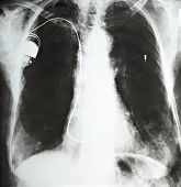 image of pacemaker  - close up of a pacemaker in a hospital