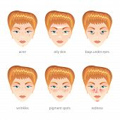 picture of freckle face  - Problem skin different face diseases vector set - JPG