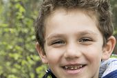 pic of edentate  - Smiling boy and his broken teeth with caries curves - JPG
