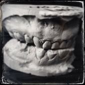 picture of crooked teeth  - Instagram style image of plaster teeth model - JPG