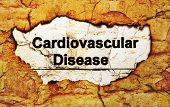 stock photo of cardiovascular  - Close up of Cardiovascular disease text in paper hole - JPG