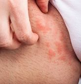 stock photo of itchy  - Eczema groin atopic dermatitis symptom of skin texture - JPG