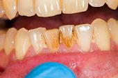 picture of  habits  - Dental plaque on denture sign of smoking habits - JPG