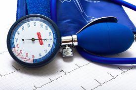 picture of ekg  - ekg and arterial blood pressure measurement stuff - JPG