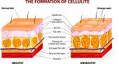 foto of fat cell  - The formation of cellulite - JPG