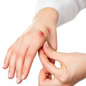 picture of hurt  - Putting plaster on hurt red skin isolated on white - JPG