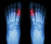 "pic of big-foot  - ""Rheumatoid arthritis Gouty arthritis"" X-ray child"