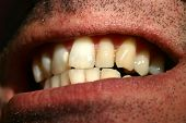picture of crooked teeth  - Mouth with crooked teeth - JPG