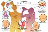 pic of ethanol  - medical illustration of the damage caused by alcohol on young - JPG