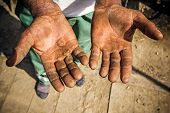 stock photo of callus  - Worker is showing his chapped hands dirty and injured palms - JPG
