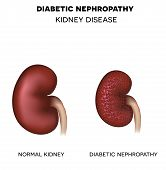 Постер, плакат: Diabetic Nephropathy Kidney Disease