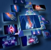 stock photo of caring  - Human joints concept with the skeleton anatomy of the body with a group of panels of sore joints glowing as a pain and injury or arthritis illness symbol for health care and medical symptoms - JPG
