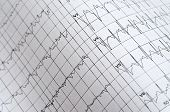 Electrocardiogram Chart As Medical Background. Close Up poster