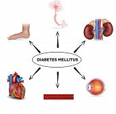 picture of diabetes mellitus  - Diabetes mellitus affected areas - JPG