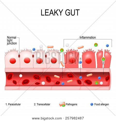poster of Leaky Gut. Cells On Gut Lining Held Tightly Together. In Intestine With Celiac Disease And Gluten Se