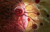 stock photo of tumor  - cancer cell  attack made in 3d software - JPG