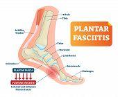 Plantar Fasciitis Vector Illustration. Labeled Human Feet Sport Disorder Diagram. Educational Medica poster