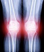 X-ray Image Of  Both Knee Ap View Show Osteoarthritis Knee Or Oa Knee . poster