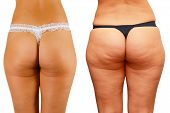 picture of voluptuous  - cellulite skin at woman buttocks - JPG