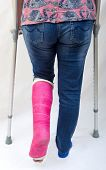 stock photo of fracture  - A lady with a fractured leg in a pink pot walking  away from the camera with the aid of crutches - JPG