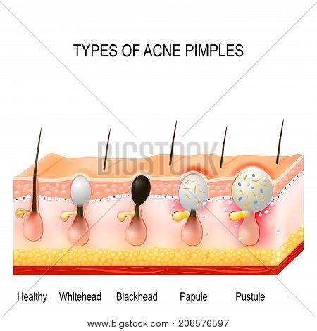 acne pustule diagram just wiring data