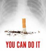 Cigarette butt ant text YOU CAN DO IT on light background. Concept of smoking cessation poster
