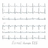 picture of ecg chart  - Normal healthy human illustration of ECG - JPG