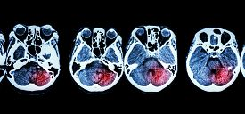 image of cerebrum  - Stroke  - JPG