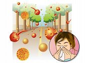stock photo of cough  - medical illustration of the effects of the pollen allergy - JPG