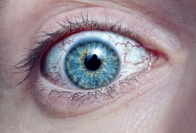 pic of lachrymal  -  men eye with red blood vessels macro - JPG