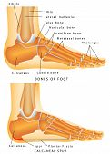 picture of flat-foot  - Human Anatomy  - JPG