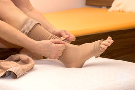 pic of stocking-foot  - A female is putting thrombosis stockings on - JPG