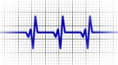 stock photo of electrocardiogram  - Electrocardiogram  - JPG