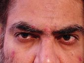 image of face-fungus  - Close up of Indian man with skin malady - JPG