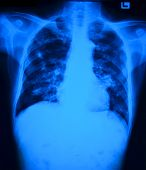 image of tuberculosis  - Chest x - JPG