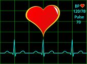 A healthy heart illustration with a cardiac trace showing normal sinus rhythm, blood pressure and pu