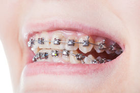 picture of mandible  - dental steel brackets on teeth close up during orthodontic treatment - JPG