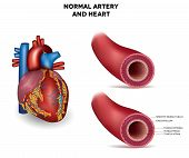 pic of atherosclerosis  - Healthy human elastic artery and heart detailed illustration - JPG