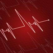 stock photo of cardiology  - Close up heartbeat or electrocardiogram on screen for medicine and cardiology design - JPG