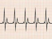 picture of flatline  - cardiogram hospital - JPG