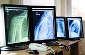 stock photo of radiation therapy  - Photo of Radiography of human body parts - JPG