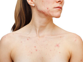 stock photo of papule  - Portrait of woman showing her pimples on isolated white background - JPG