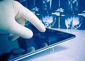 image of diagnostic medical tool  - hand in medical blue glove touching modern digital tablet on x - JPG