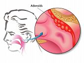 stock photo of pharyngitis  - simbolic medical illustration of the anatomy of adenoids - JPG