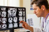 stock photo of cat-scan  - Doctor examining an MRI scan of the Brain on Monitior - JPG