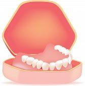 picture of denture  - construction denture housing hygiene and transport denture housing - JPG