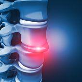 Постер, плакат: 3d image of Herniated disk human spinal