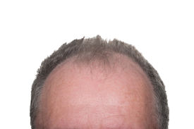 foto of male pattern baldness  - Balding Head Showing Male Pattern Baldness on White Background - JPG