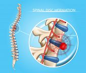 Spinal Disk Herniation Vector Medical Scheme With Vertebral Column And Herniated Disc Anatomical Ill poster