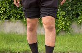 Asian Man Leg Bandy-legged Shape Of The Legs poster